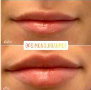 Dr. Simon Ourian's Non-Surgical Solution to Lip Augmentation, dermalfillerbeforeandafter